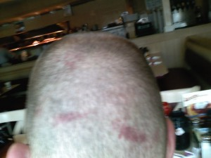 Bruises on the back of my head